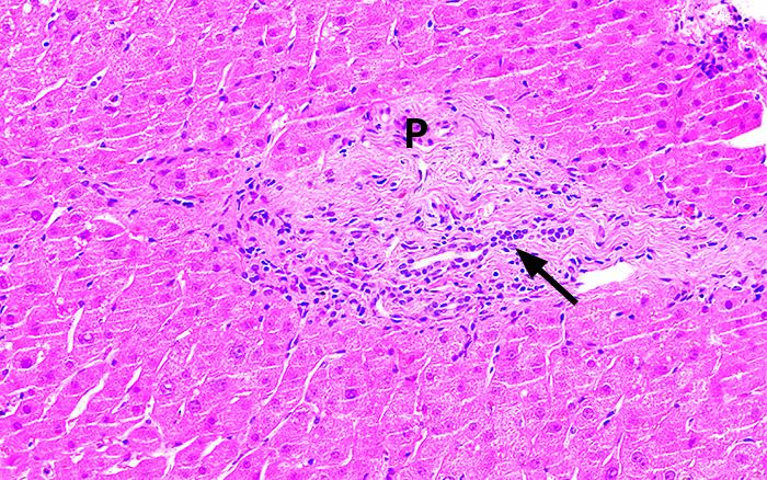 Figur 4. Biopsi tagen sex månader efter utsättning av dalterapin. Ett portafält (P) ses med någon fibros och blygsam gallgångsinflammation men utan inflammation (svart pil). Leverparenkymet är nu normalt med opåverkade leverceller och ingen kolestas