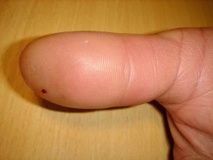 svullet finger smärta