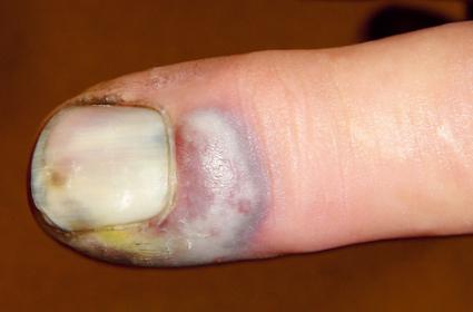 inflammation nagelband behandling