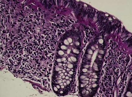 lymfocytär kolit behandling