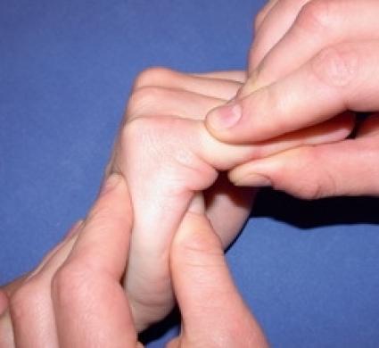 spricka i fingret symptom